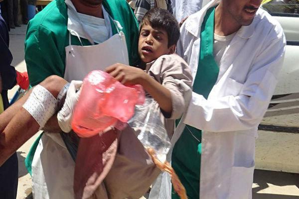ضعف گسترده سازمان ملل در رسیدگی به اوضاع انسانی در یمن محکوم است