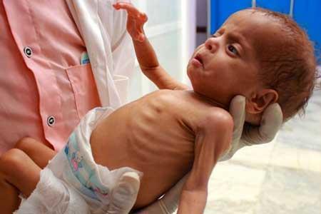 5 میلیون یمنی یک گام با قحطی فاصله دارند