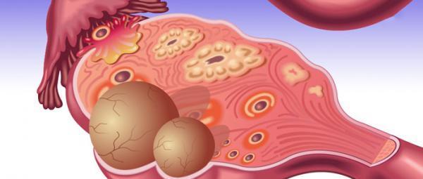 راه های درمان کیست تخمدان در خانه